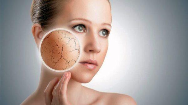 6 bí quyết khắc phục làn da khô tróc mùa lạnh