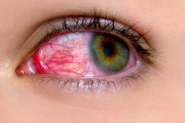Đau mắt đỏ: Dấu hiệu và điều trị