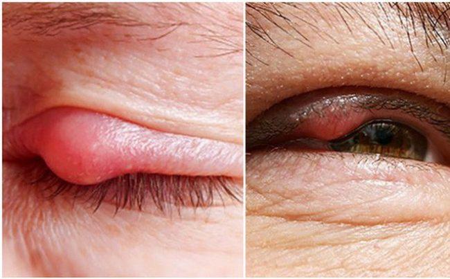 Lẹo mắt: Nguyên nhân, triệu chứng và cách điều trị