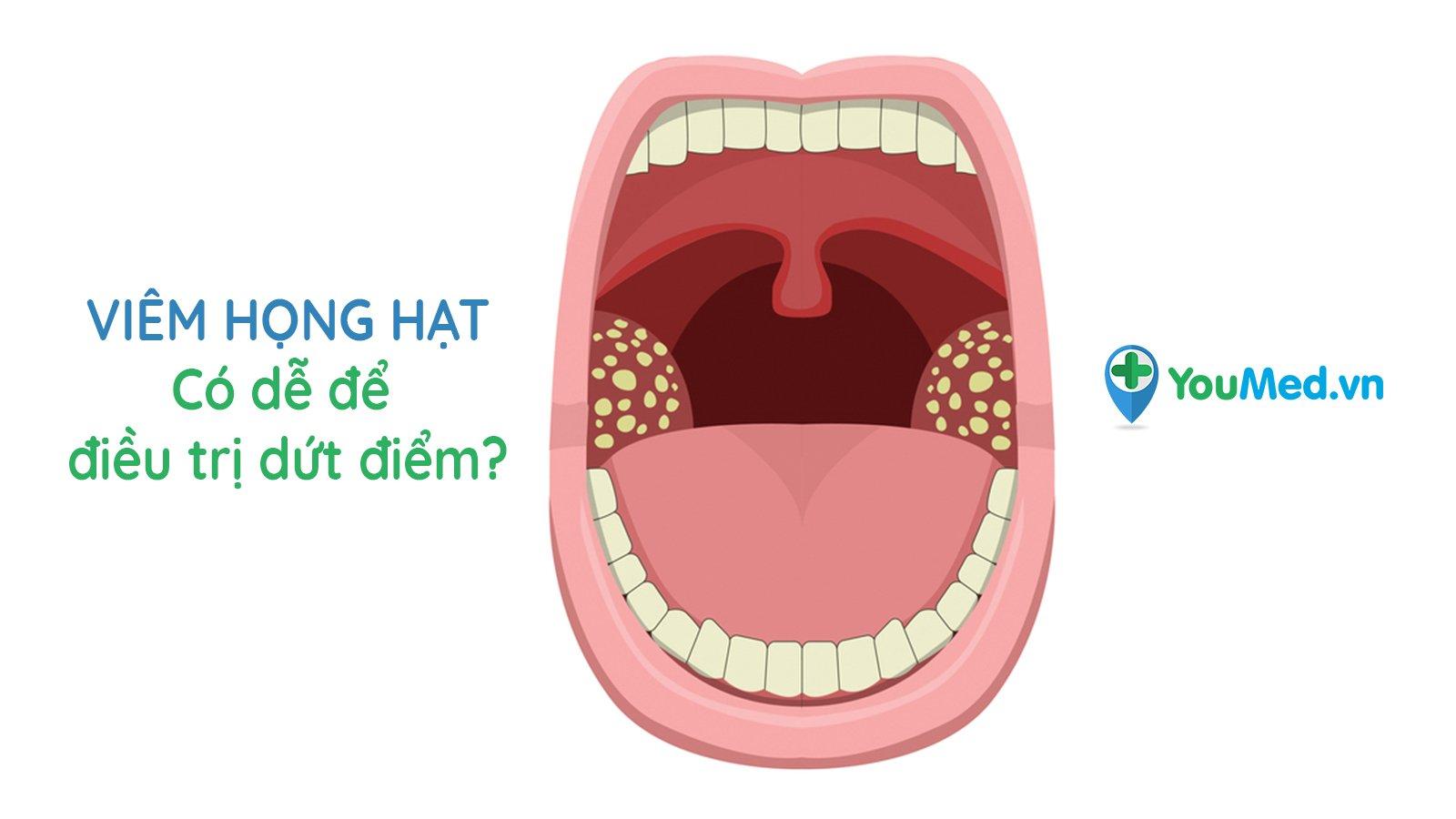 Viêm họng hạt: Có dễ để điều trị dứt điểm?