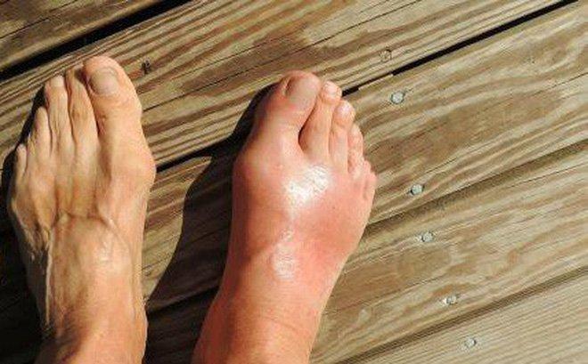 Gout đã không còn là căn bệnh của người giàu: Giải đáp 5 câu hỏi thường gặp về gout!