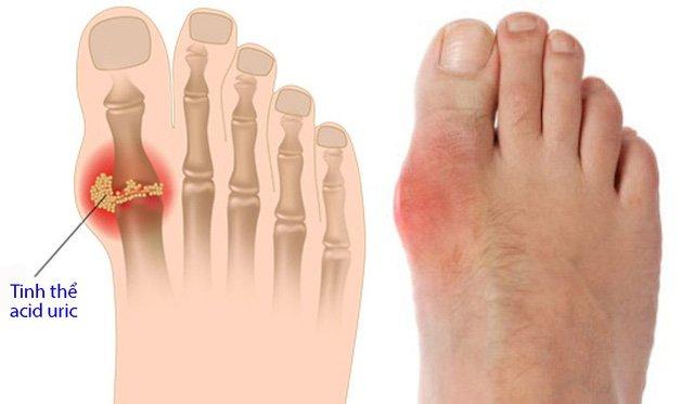 Gout đã không còn là căn bệnh của người giàu: Giải đáp 5 câu hỏi ...