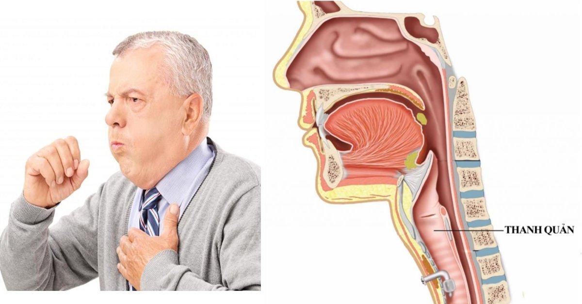 Khó thở thanh quản: Dấu hiệu, nguyên nhân và cách điều trị