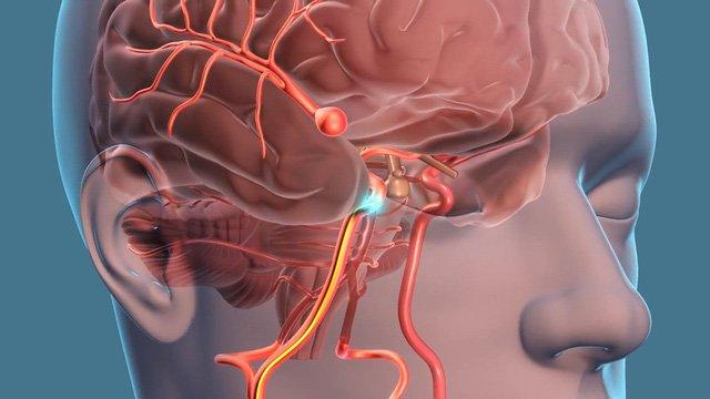 Y học thường thức: Túi phình mạch máu não