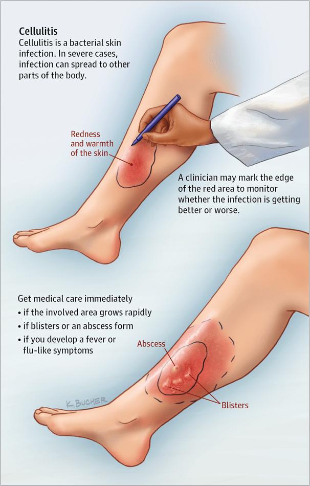 viêm mô tế bào 2