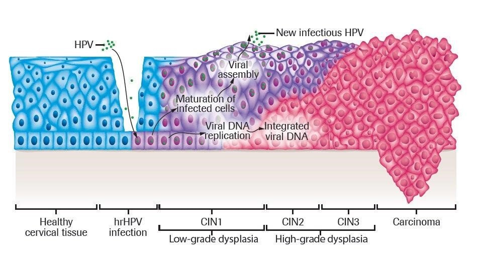 ung thư cổ tử cung 2