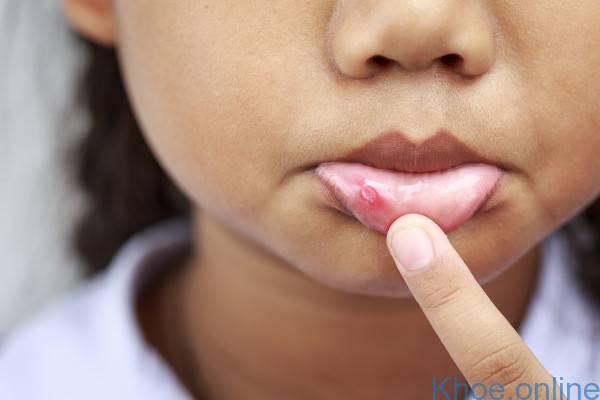 Làm gì khi trẻ bị viêm loét ở miệng?