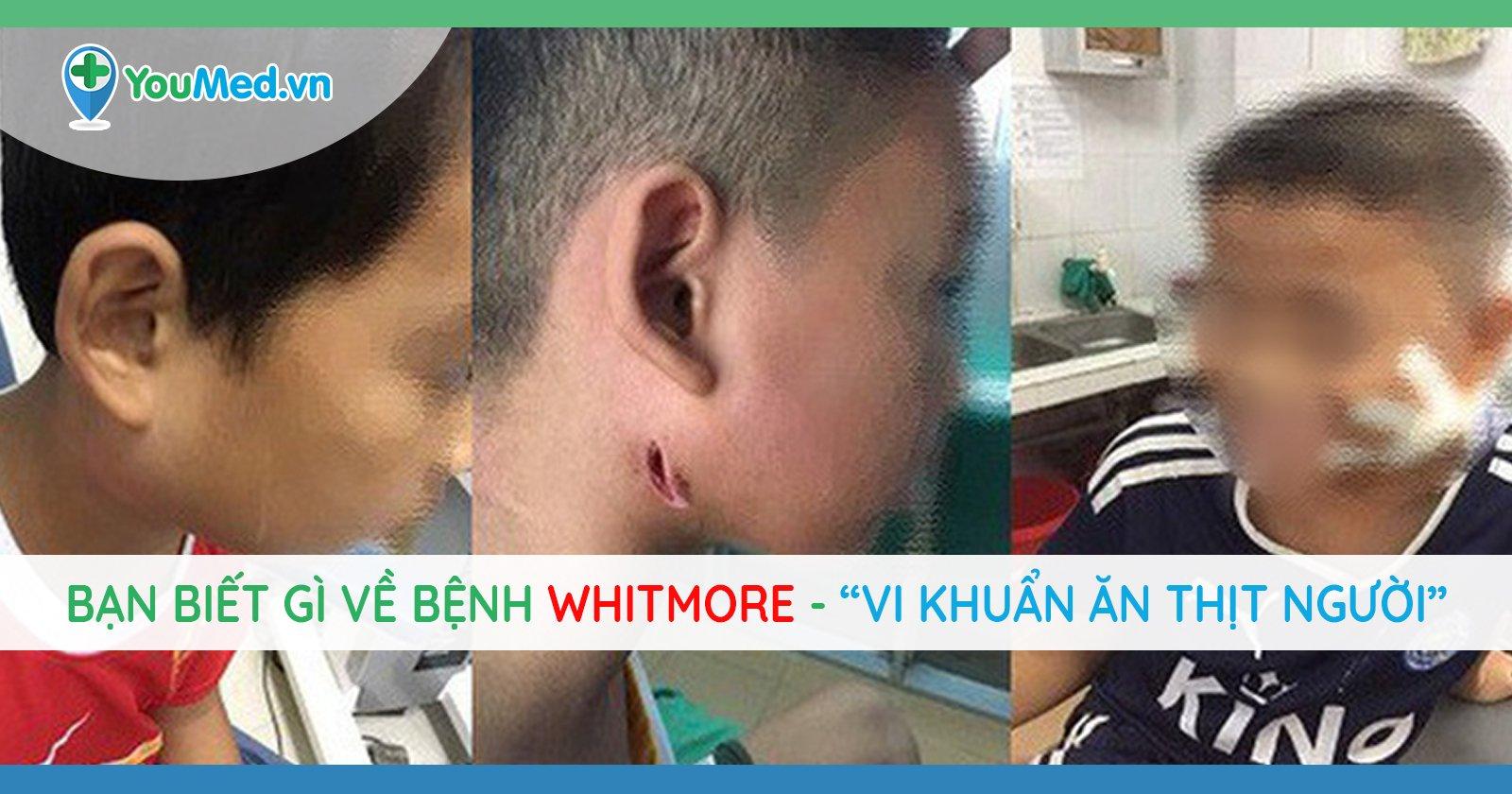 Bệnh Whitmore: Dấu hiệu, khả năng lây lan, mức độ nguy hiểm và phòng ngừa