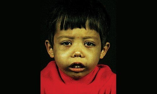 Bệnh tan máu bẩm sinh (THALASSEMIA)