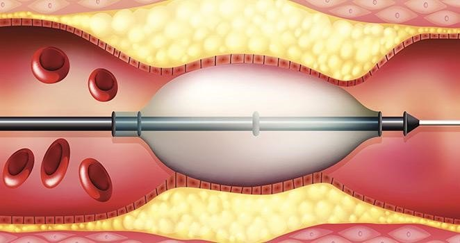 can thiệp nội mạch 2