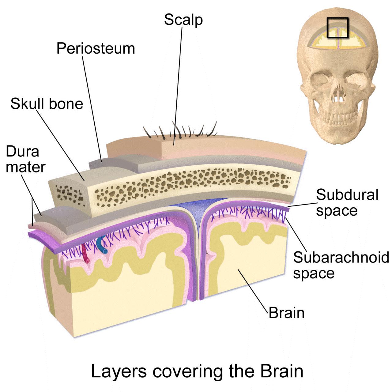 Máu tụ dưới màng cứng 2