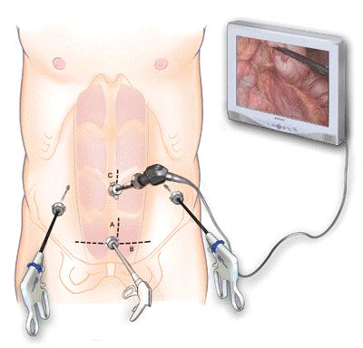 Phẫu thuật xâm lấn 2