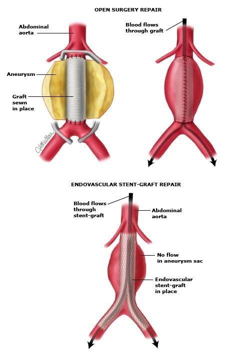 can thiệp nội mạch 5