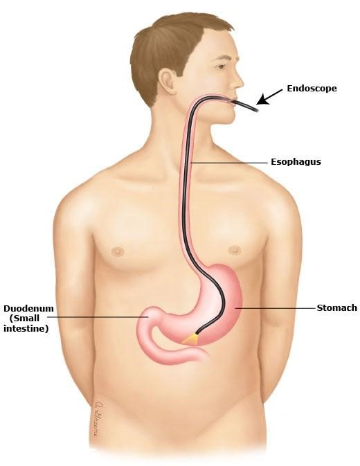 Phẫu thuật xâm lấn 5