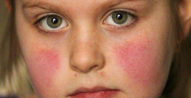 Y học thường thức: Bệnh Lupus ban đỏ