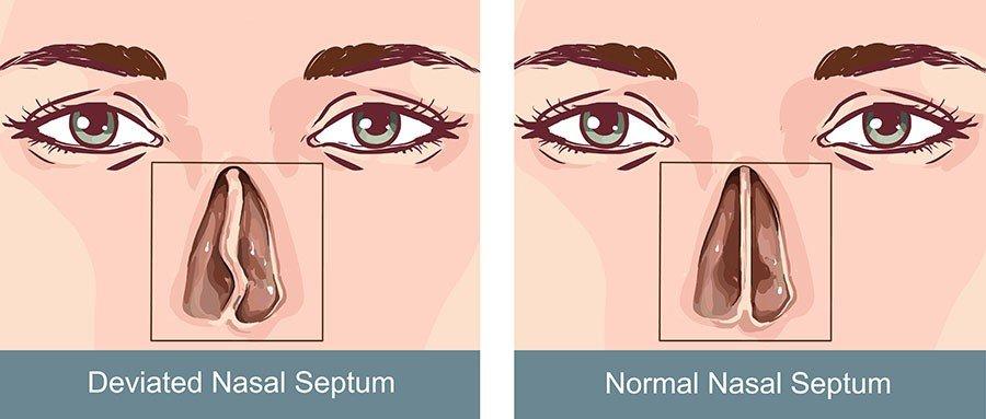 vẹo vách năn mũi 1