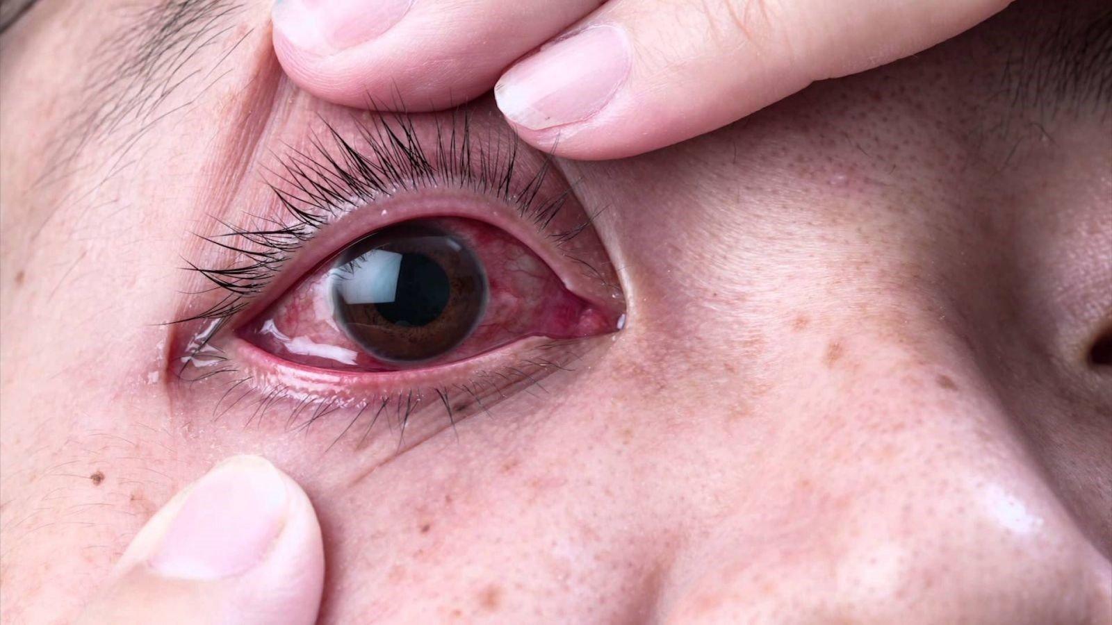 đau mắt hột 1