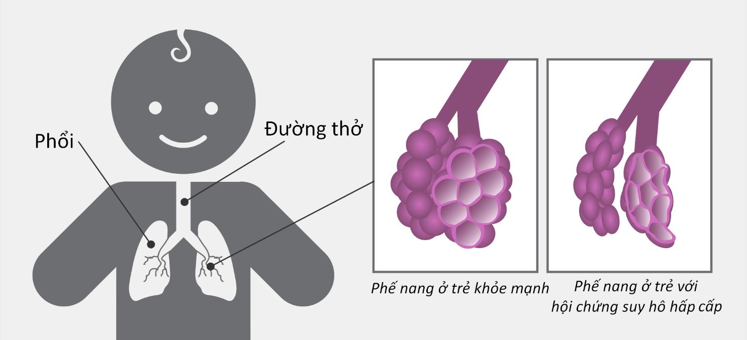 suy hô hấp cấp 1