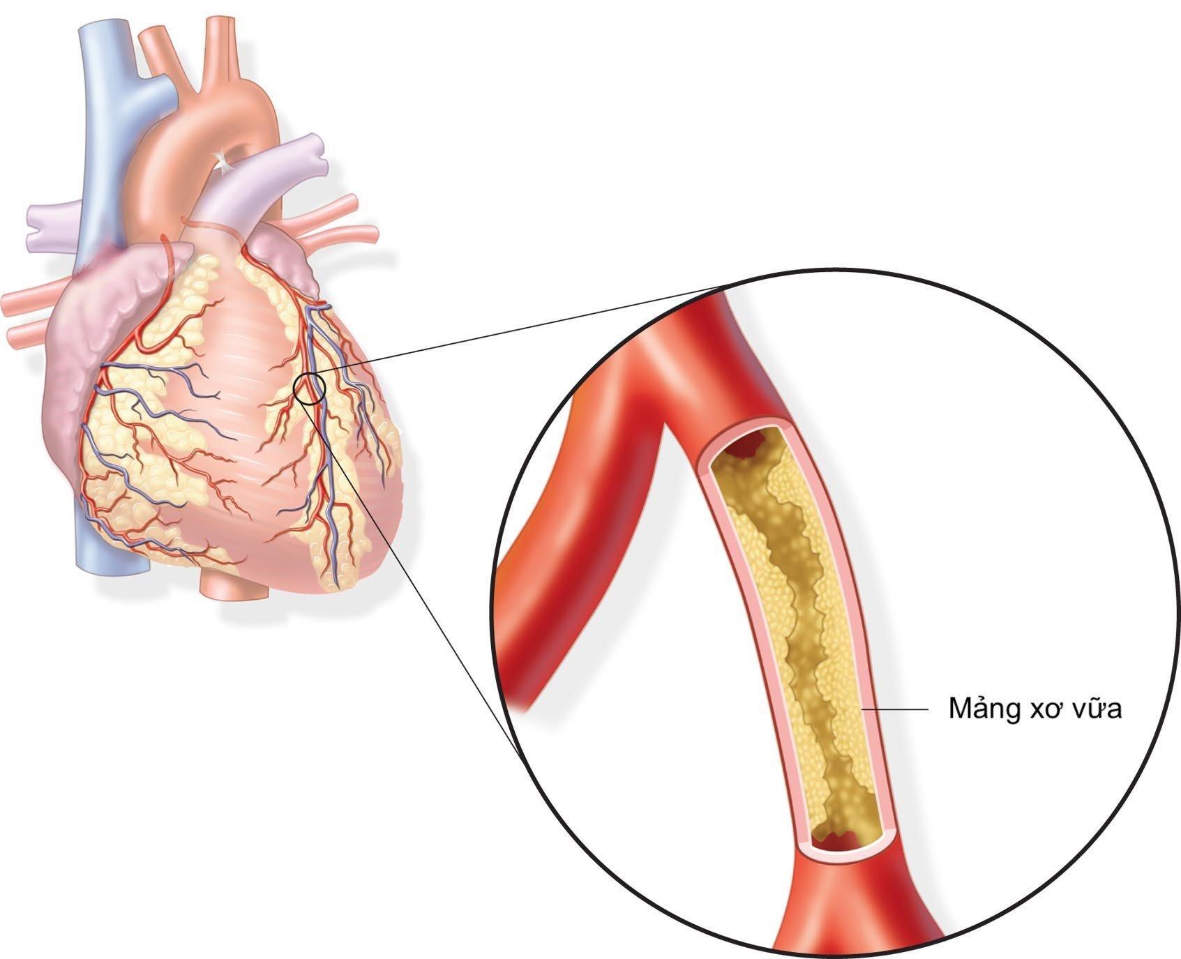 Thiếu máu cơ tim 1