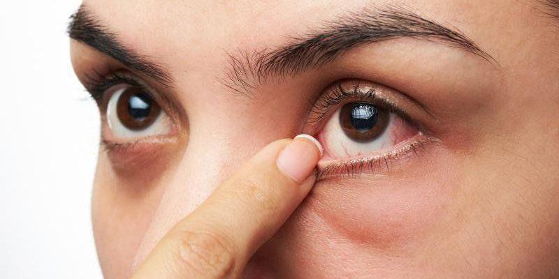 Đau mắt hột: Triệu chứng – Nguyên nhân – Điều trị
