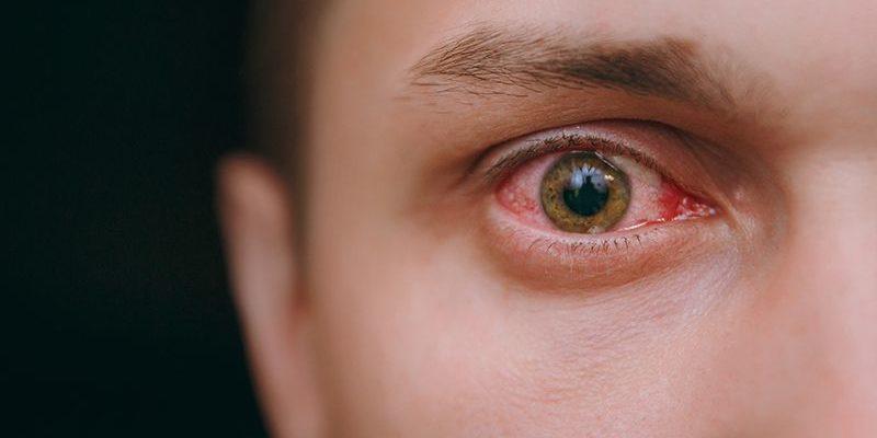 Viêm màng bồ đào: Nguyên nhân – Triệu chứng – Điều trị