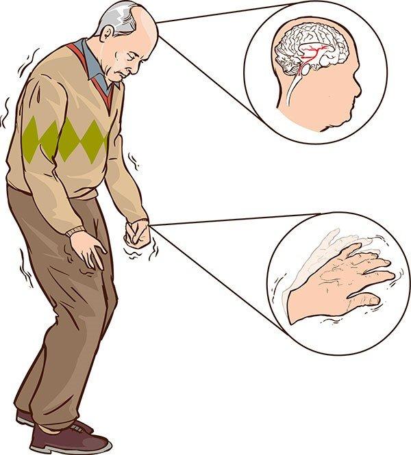 Bệnh Parkinson: Những thắc mắc thường gặp về căn bệnh gây run ở ...