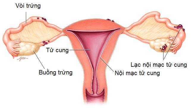 nội mạc tử cung 1