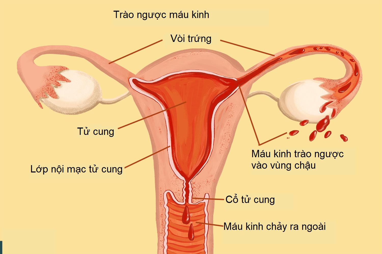 nội mạc tử cung 3