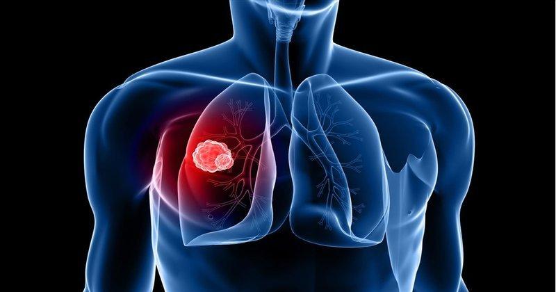 Tarceva là thuốc gì ung thư phổi