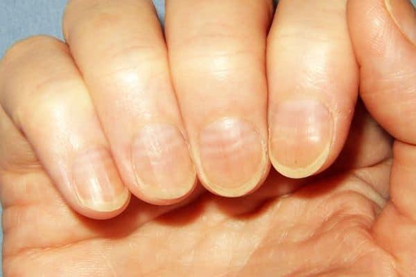 móng tay và sức khỏe 9