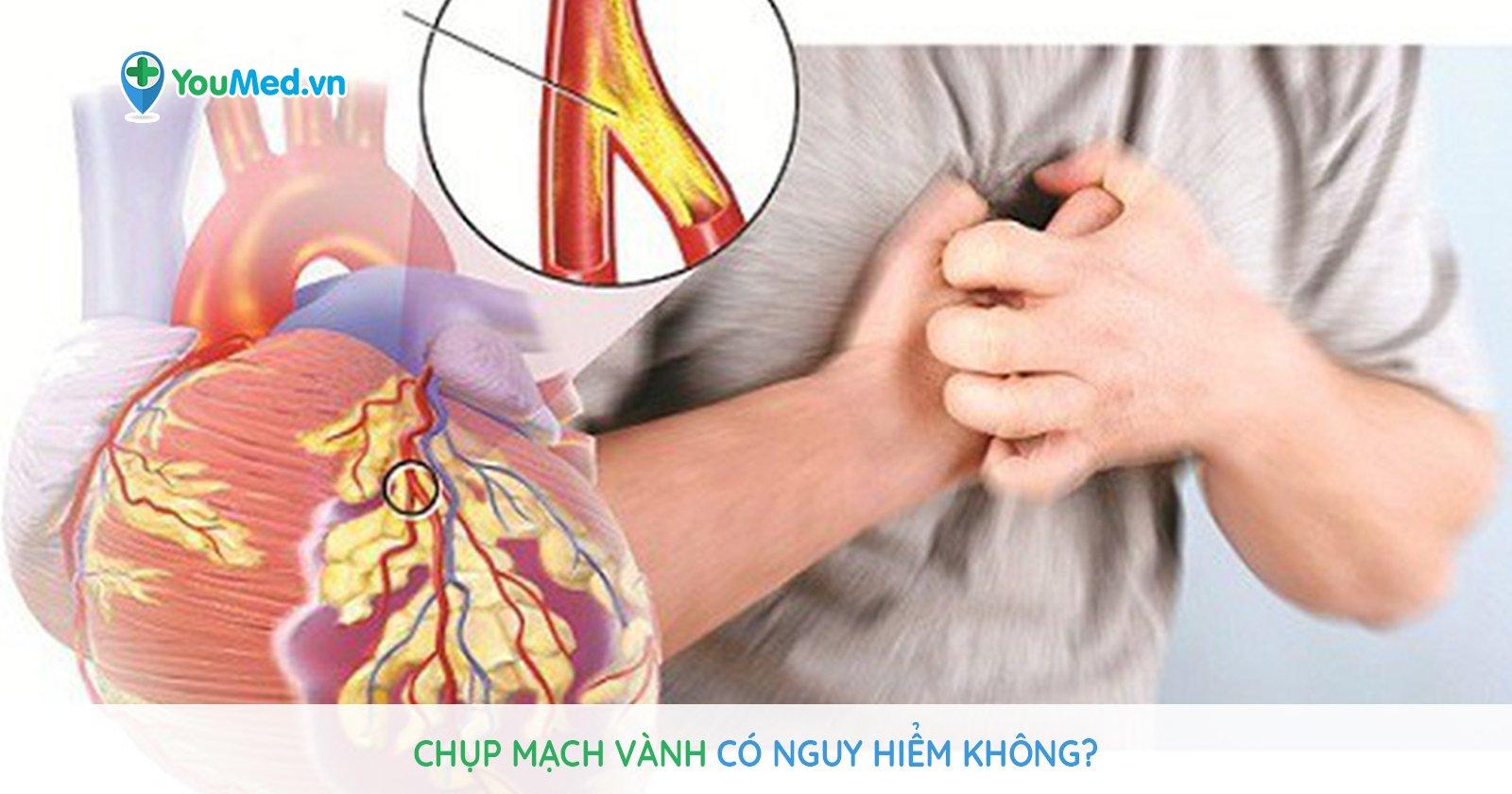 Chụp mạch vành có nguy hiểm không?