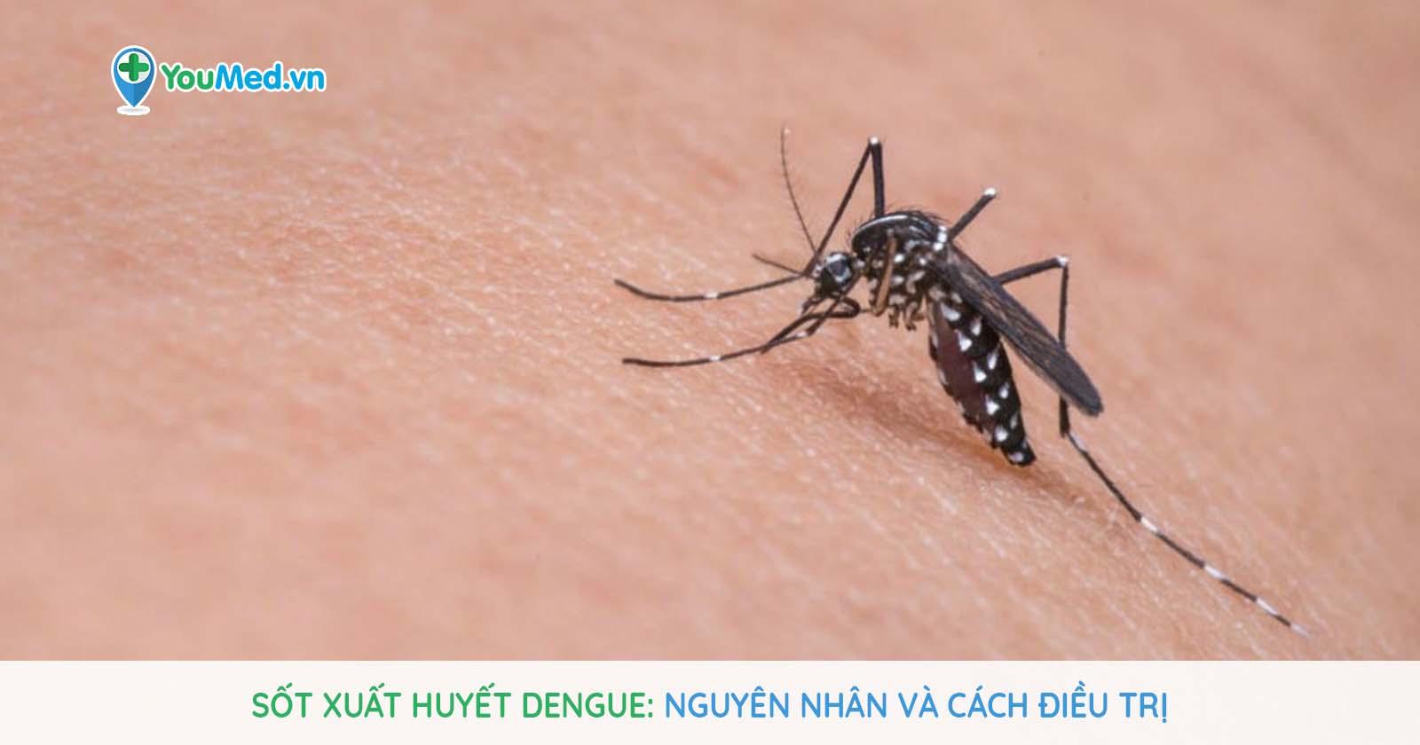Sốt xuất huyết Dengue là gì? Có chữa được không?