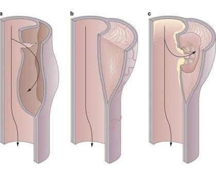 Bóc tách thành động mạch chủ: Máu và huyết tương qua vết loét, tách các lớp thành động mạch rời nhau ra