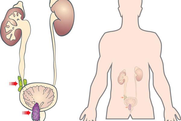 Suy thận do ung thư tiền liệt tuyến chèn ép vào bàng quang, niệu đạo